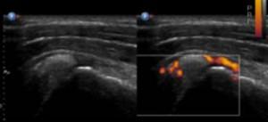 DIU d'échographie diagnostique ostéo-articulaire